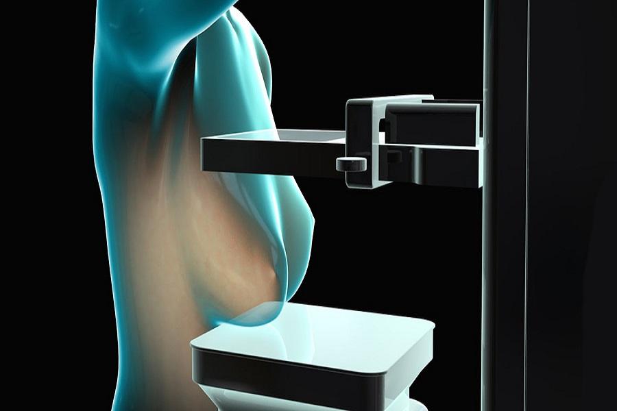 Argentinos diseñaron un mamógrafo que no requiere de rayos X