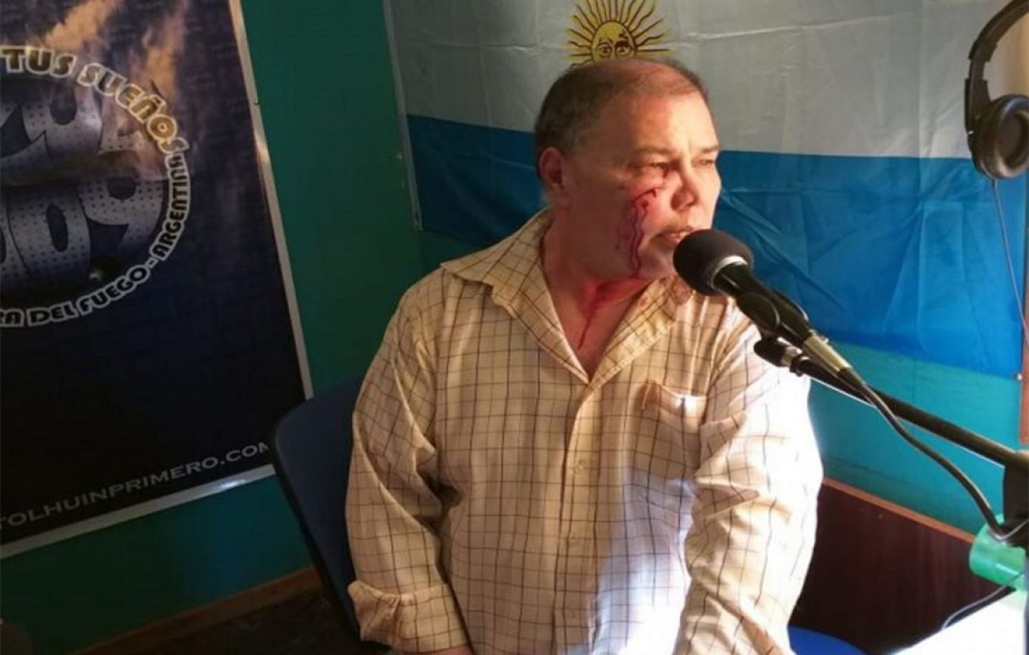 Agredieron a Telmo Benítez mientras emitía su programa de radio
